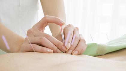Akupunkturnåler