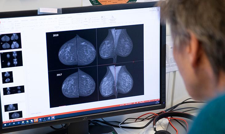 Solveig ser på skjerm, Mammografiprogrammet
